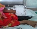 Liên tiếp 2 nạn nhân bị máy chém lìa chân
