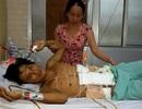 Vợ nghèo đau đớn nhìn chồng nguy kịch vì tai nạn giao thông