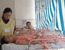 Vụ tai nạn 13 người tử vong: Ca phẫu thuật xuyên đêm cứu 2 nạn nhân