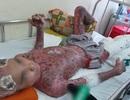 """14 cuộc phẫu thuật, cứu bệnh nhân bị """"nướng tái"""" toàn thân"""