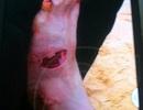 Cận cảnh vết thương kinh hoàng của bà bầu bị sinh vật lạ tấn công