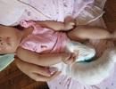 Ứa nước mắt với bé gái 4 tháng tuổi tứ chi co quắp vì không có tiền chữa trị