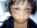 Nghi án bé gái 7 tuổi bị mẹ kế bạo hành