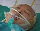 Lao vào cứu bố, nữ sinh lớp 12 bị điện giật thập tử nhất sinh