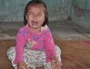 Bố mẹ bỏ đi hết, bé hơn 1 tuổi sống lay lắt với bà nội và ông dở dại
