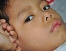 Xót xa bé trai 5 tuổi bị máy cắt gạch cắt gần lìa bàn chân