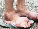 Bệnh lạ khiến cả làng biến dạng chân tay