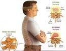 """Cách nào """"xử lý"""" các """"thủ phạm"""" gây đau lưng?"""
