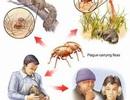 Lấy mẫu giám sát dịch hạch trên bọ chét, chuột, người