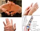 Hệ lụy từ thói quen bẻ khớp ngón tay