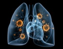 Viêm phổi làm suy giảm thể chất và tinh thần người lớn tuổi