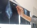 Ung thư vú: Hiểu bệnh mới điều trị hiệu quả