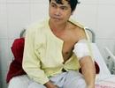 Phẫu thuật nối mạch máu ngoại vi cánh tay do khỉ cắn