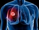 Thử nghiệm phương pháp điều trị ung thư phổi bằng tế bào gốc