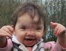 Bé 2 tuổi được tái tạo mặt nhờ công nghệ in 3D