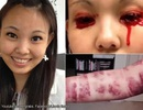 Bệnh lạ khiến thiếu nữ trào máu mắt và miệng