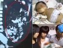 Thai nhi nằm trong trong dạ dày bé sơ sinh
