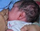 Phát hiện dòi trong tai trẻ sơ sinh