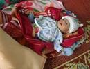 Cứu sống trẻ sinh non bị viêm phổi nặng và dị tật ống tiêu hóa