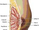 Tạm dừng ghép tế bào gốc điều trị ung thư vú tại BV Ung bướu Nghệ An