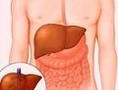 Tầm soát bệnh Viêm gan siêu vi C