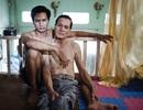 Hôn nhân đồng tính: Không cấm nhưng không thừa nhận