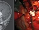 Phát hiện răng trong khối u não