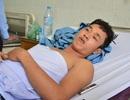 """Nhập viện vì đa chấn thương sau khi """"làm việc"""" với công an"""