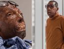 Ca ghép mặt hoàn toàn đầu tiên được thực hiện trên người da màu
