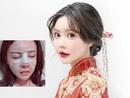 Cô gái Trung Quốc 20 tuổi phẫu thuật thẩm mỹ tổng cộng 33 lần