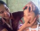 Cha ruột nhẫn tâm đánh đập con gái phải nhập viện điều trị