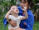 Thương bé 3 tuổi không cha, bị đục thủy tinh thể và tim bẩm sinh