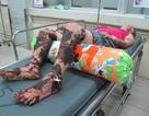 Một phụ nữ nhiễm trùng nặng vì đắp lá cây lạ chữa phỏng