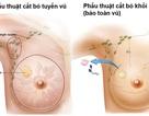 Ung thư vú: Nên cắt bỏ hay bảo toàn vú?