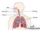5 sự thật cần biết trong cách chữa viêm họng