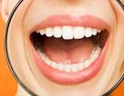 Gần 4 tỉ người trên thế giới nhiễm siêu vi gây mụn rộp quanh miệng