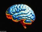 """Trắc nghiệm độ """"khỏe"""" của bộ não"""