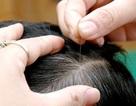 Những cách đơn giản chữa tóc bạc sớm