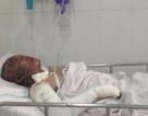 4 thanh niên bỏng nặng: Dùng xăng, cồn lau nhà, hậu quả kinh khủng