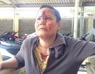 Một phụ nữ bị đánh đổ máu tại trung tâm môi giới việc làm