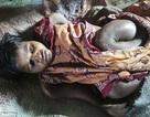 Cô gái 25 tuổi bị teo nhỏ cơ thể như bé sơ sinh