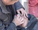 Người phụ nữ bị bệnh lạ khóc ra... đá sỏi