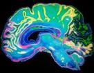 Béo phì làm bộ não già hơn 10 tuổi so với bình thường