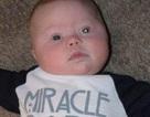 Phát hiện ung thư mắt ở bé 4 tháng tuổi nhờ chụp ảnh