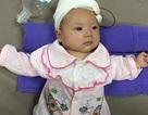 Vụ bé 35 ngày tuổi bị dao quắm xuyên não: Bệnh nhi đã tự thở, tự bú được