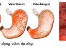 Bí quyết giúp tránh tái phát viêm loét dạ dày