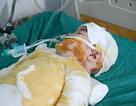 Mẹ bất cẩn, bé 3 tuổi bị bỏng nước sôi toàn thân