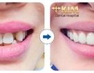 Bọc răng sứ không cần mài răng tại Bệnh viện Răng Hàm Mặt Sài Gòn