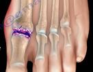 Đau ngón chân cái: Bệnh gì?