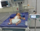 Cứu sống bé sơ sinh 1 giờ tuổi lộ nội tạng ra ngoài thành bụng